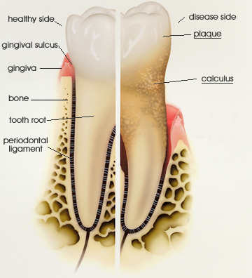 Anatomy of Periodontal Disease