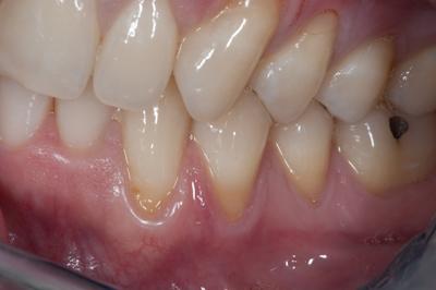 Connective tissue gum graft